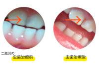 二歳児の虫歯